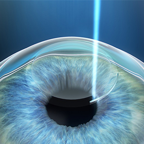 طب عيون الأطفال