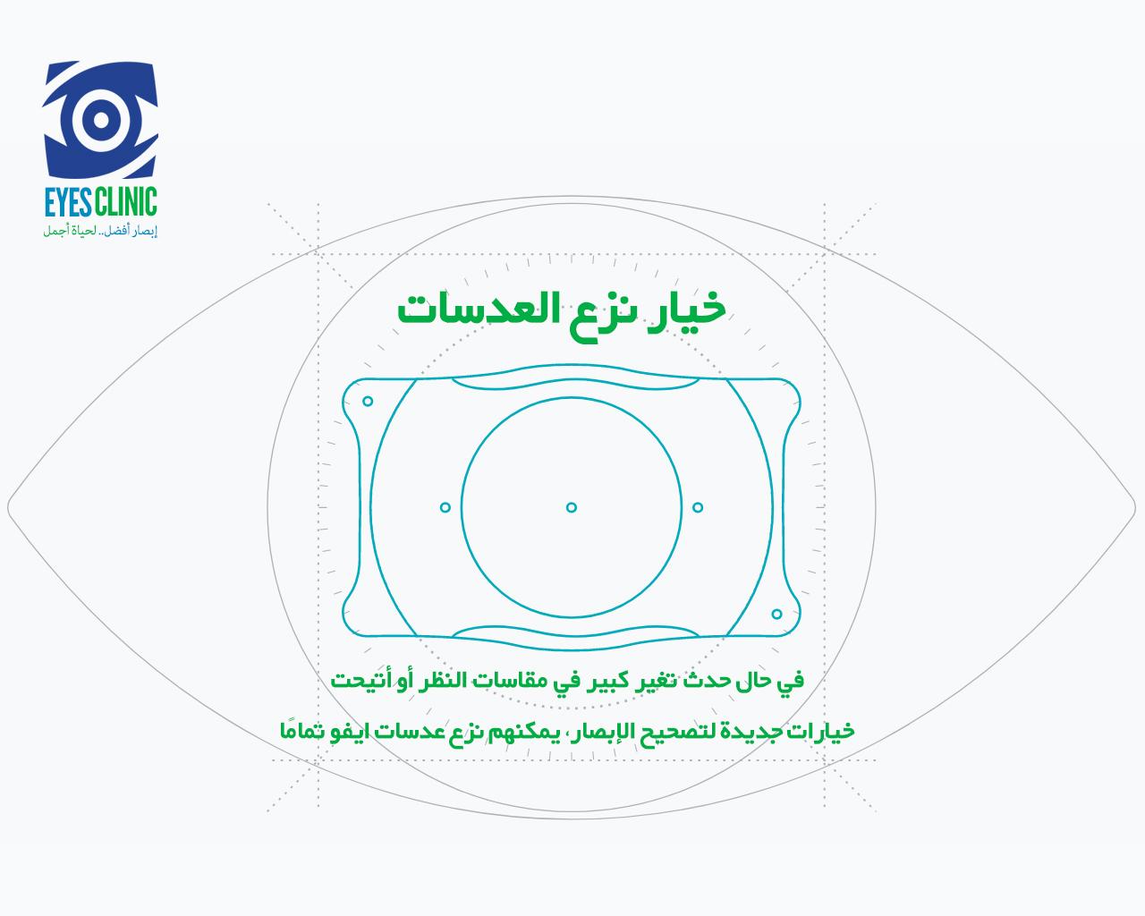 تصحيح النظر في ايران