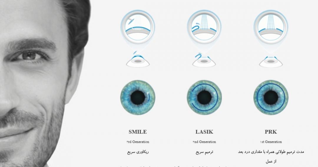 علاج ضعف النظر و تصحيح النظر عمليه فيمتو سمايل