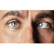 جراحة إنحراف حول العين