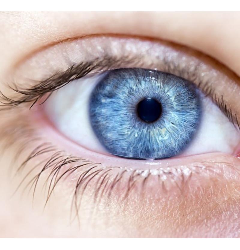 تغير لون العين في ايران