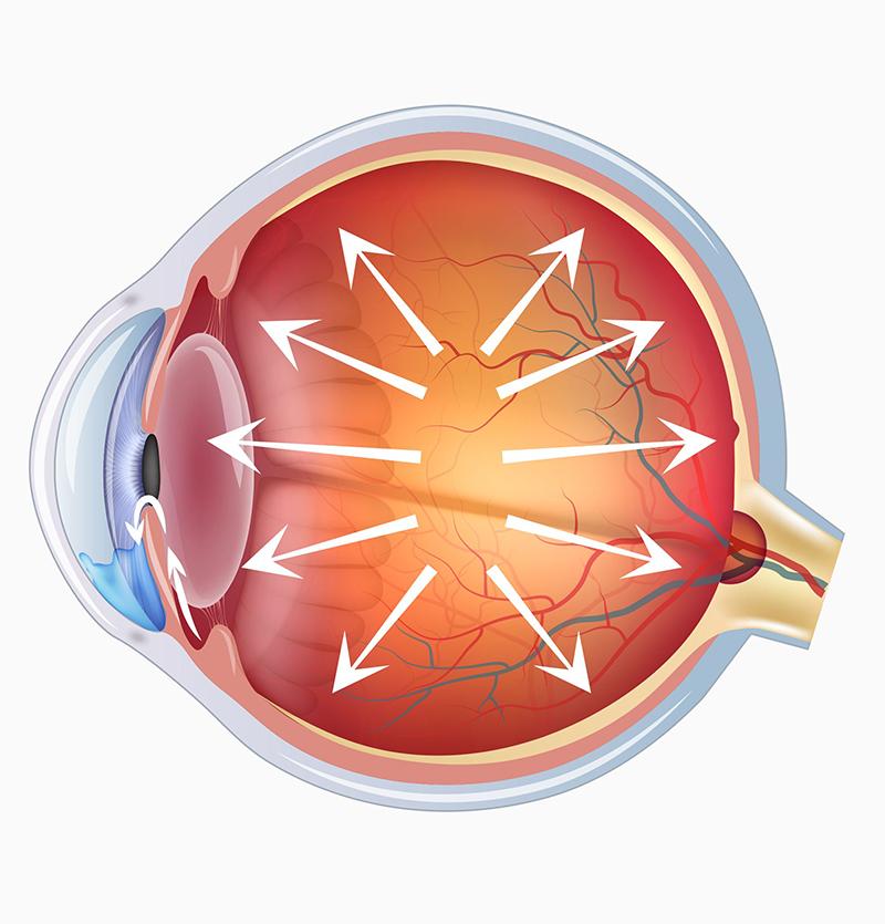 الجلوكوما | الغلوكوما | المياه الزرقاء | الزرق | الماء الاسود في العين Glaucoma