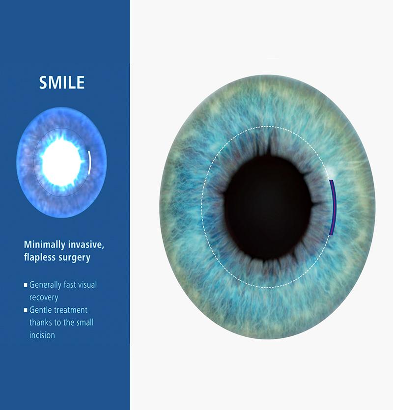 من يمكنه الحصول على جراحة العيون بالليزر؟