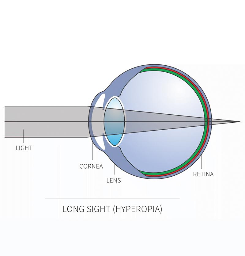 ما هي الرؤية بعيدة النظر (طول النظر)؟