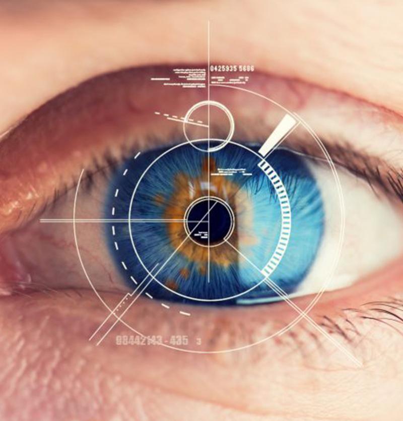 مميزات عملية زراعة العدسات اللاصقة داخل العين في إيران