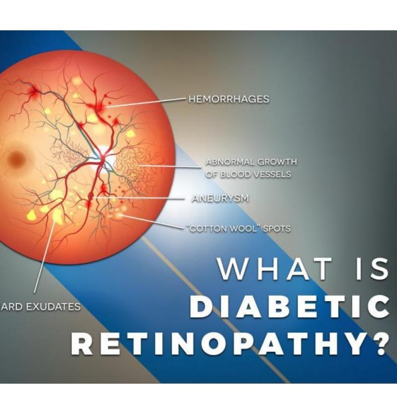 ما هوه اعتلال شبكية السكري