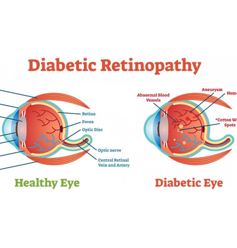 العين الطبيعية والعين بمرض اعتلال الشبكية السكري