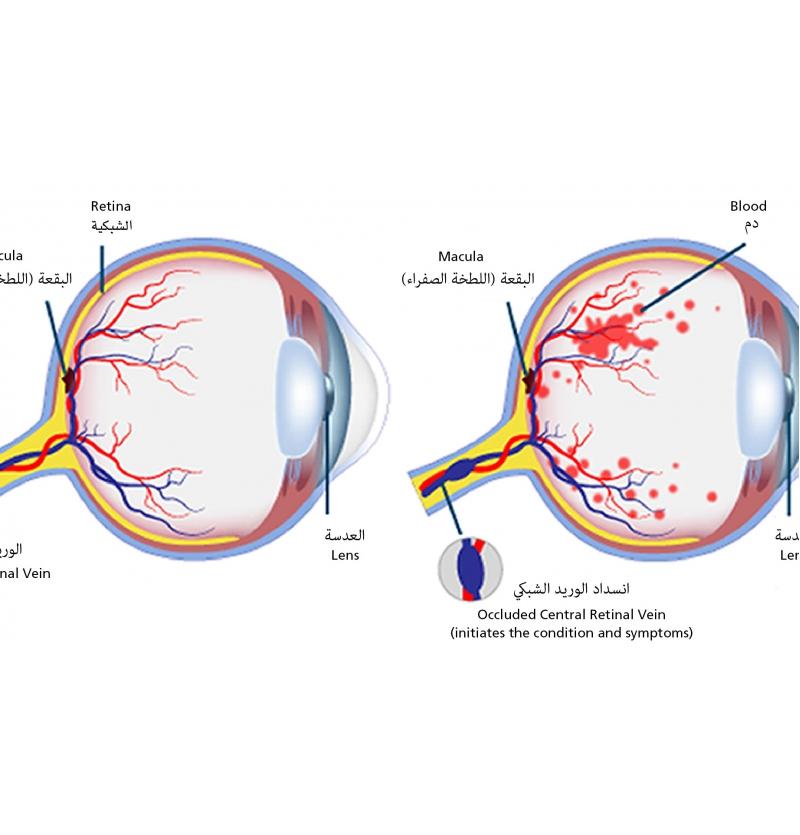 أجزاء العين والشبكية والانسداد