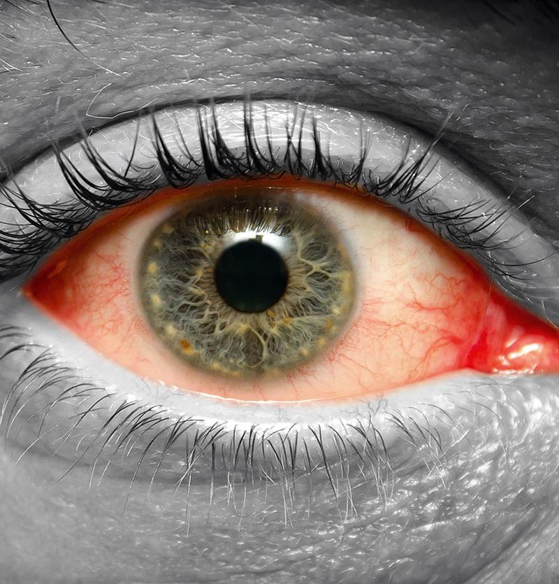 شبكية العين