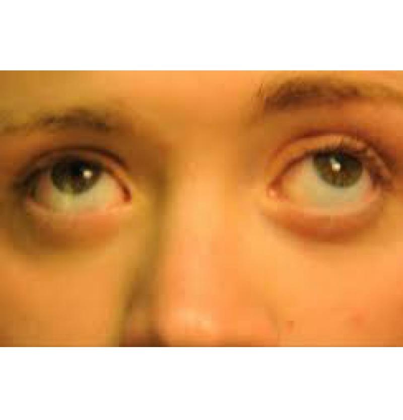 رأرأة العيون