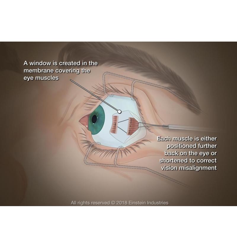 ما هو الإسترابسم علاج العيون في ايران تصحيح النظر زراعة القرنية