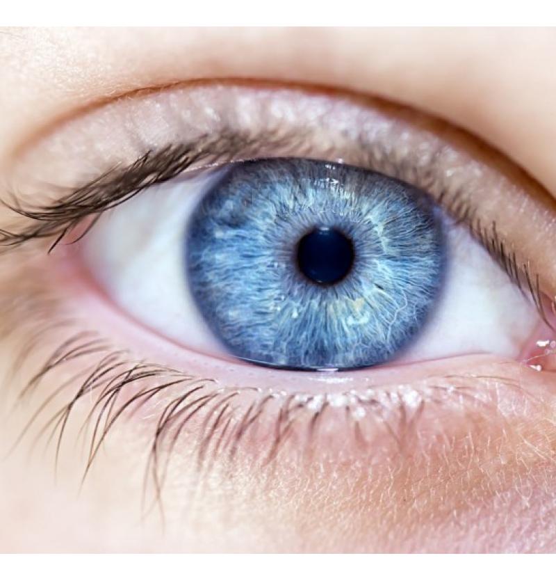 تغير لون العيون في إيران