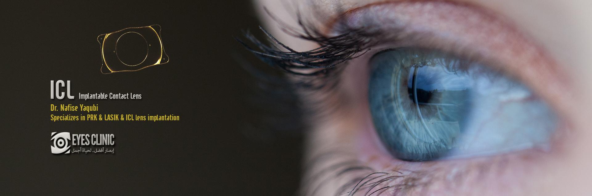 زراعة عدسات داخل العين في ايران Implant Contact Lens in Iran