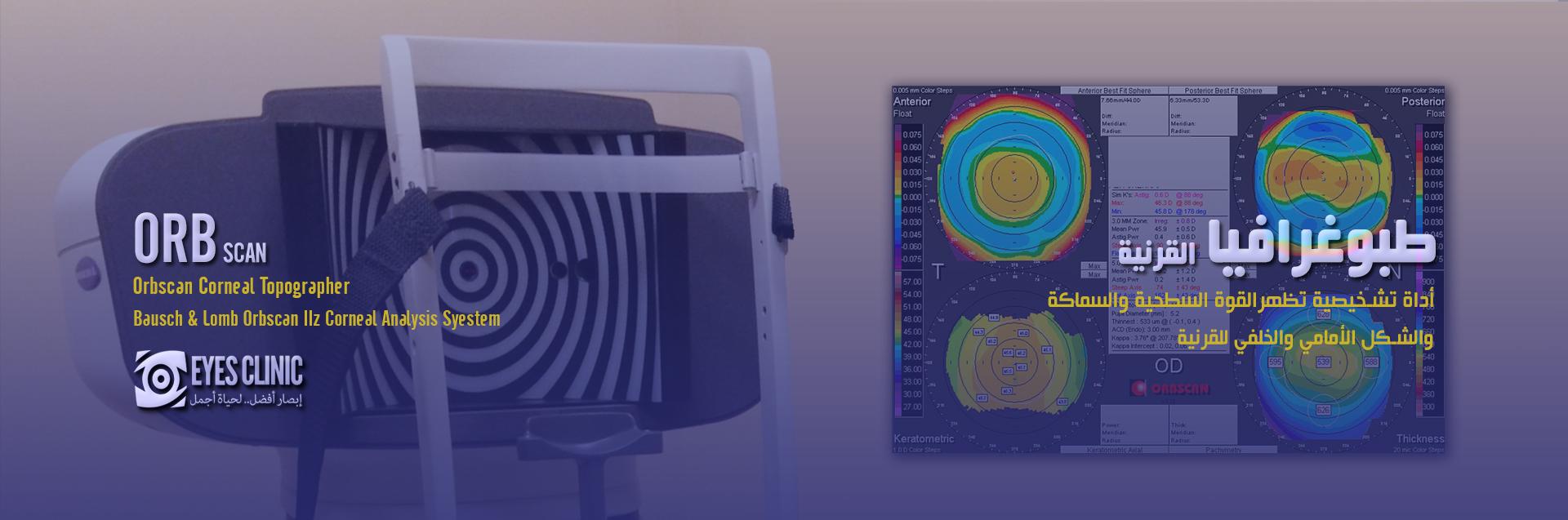 OrbScan فحص قرنية العين